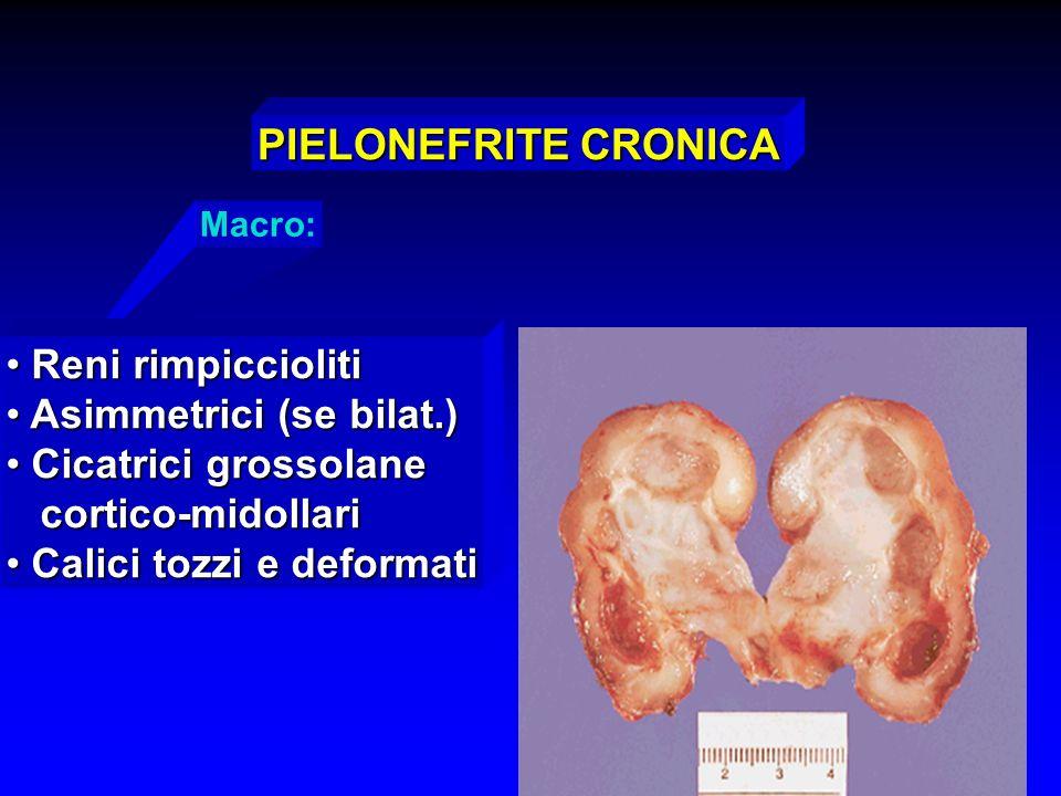 Macro: PIELONEFRITE CRONICA Reni rimpiccioliti Reni rimpiccioliti Asimmetrici (se bilat.) Asimmetrici (se bilat.) Cicatrici grossolane Cicatrici gross