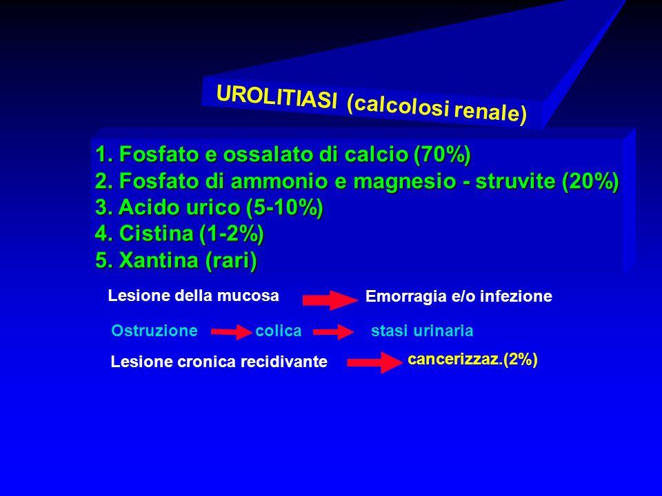 1. Fosfato e ossalato di calcio (70%) 2. Fosfato di ammonio e magnesio - struvite (20%) 3. Acido urico (5-10%) 4. Cistina (1-2%) 5. Xantina (rari) Les