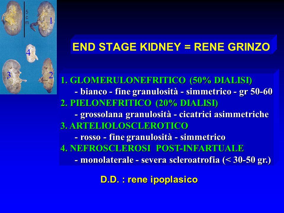END STAGE KIDNEY = RENE GRINZO 1. GLOMERULONEFRITICO (50% DIALISI) - bianco - fine granulosità - simmetrico - gr 50-60 - bianco - fine granulosità - s