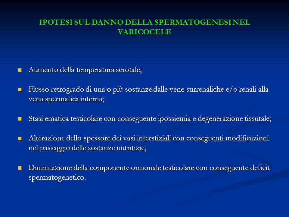 IPOTESI SUL DANNO DELLA SPERMATOGENESI NEL VARICOCELE Aumento della temperatura scrotale; Aumento della temperatura scrotale; Flusso retrogrado di una