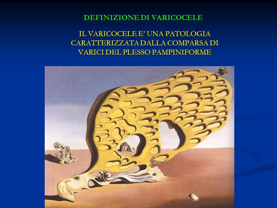 DEFINIZIONE DI VARICOCELE IL VARICOCELE E UNA PATOLOGIA CARATTERIZZATA DALLA COMPARSA DI VARICI DEL PLESSO PAMPINIFORME IL VARICOCELE E UNA PATOLOGIA