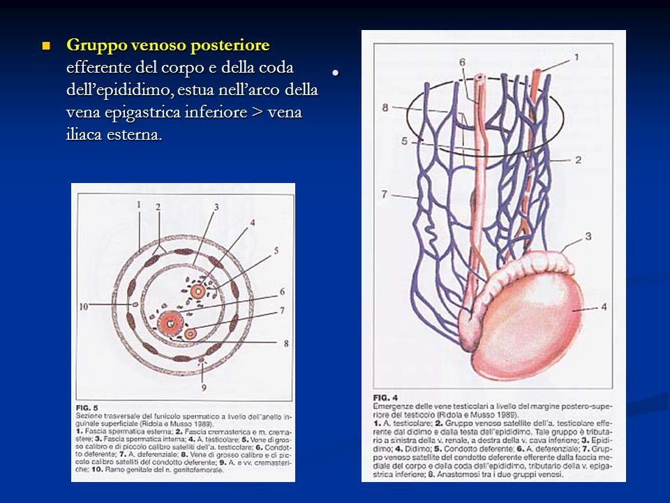 . Gruppo venoso posteriore efferente del corpo e della coda dellepididimo, estua nellarco della vena epigastrica inferiore > vena iliaca esterna. Grup