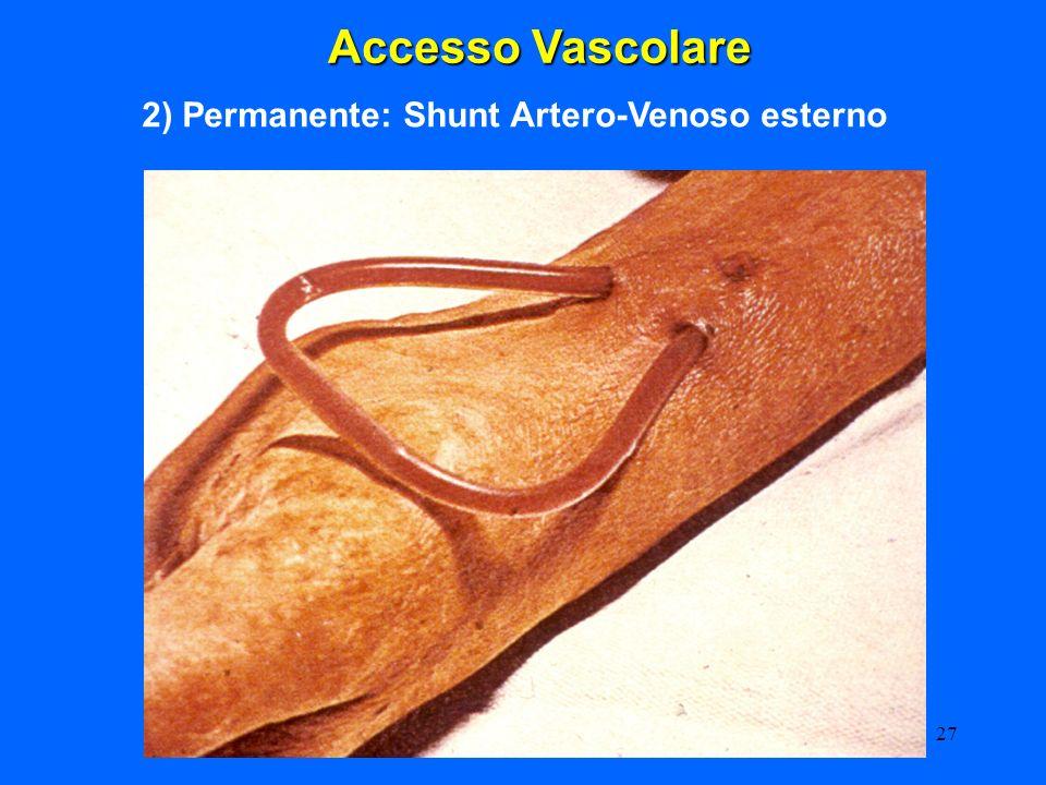 27 Accesso Vascolare 2) Permanente: Shunt Artero-Venoso esterno