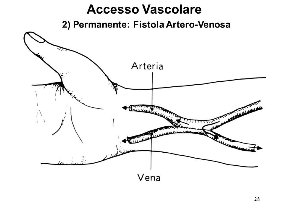 28 Accesso Vascolare 2) Permanente: Fistola Artero-Venosa