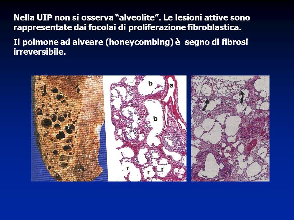 Nella UIP non si osserva alveolite. Le lesioni attive sono rappresentate dai focolai di proliferazione fibroblastica. Il polmone ad alveare (honeycomb