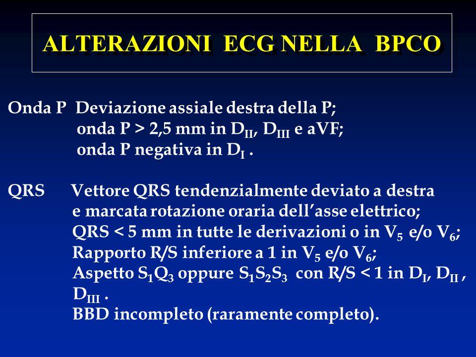 ALTERAZIONI ECG NELLA BPCO Onda P Deviazione assiale destra della P; onda P > 2,5 mm in D II, D III e aVF; onda P negativa in D I. QRS Vettore QRS ten