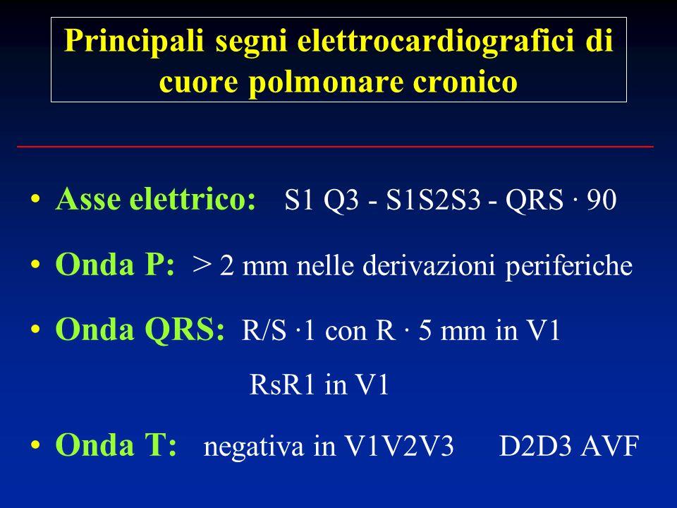 Principali segni elettrocardiografici di cuore polmonare cronico Asse elettrico: S1 Q3 - S1S2S3 - QRS · 90 Onda P: > 2 mm nelle derivazioni periferich