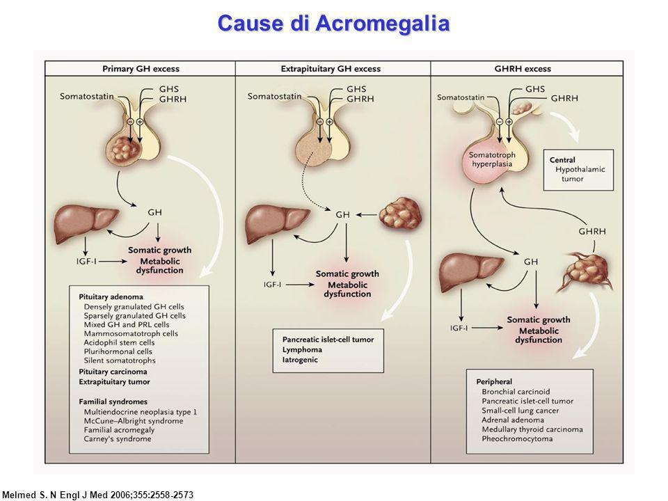 Melmed S. N Engl J Med 2006;355:2558-2573 Cause di Acromegalia
