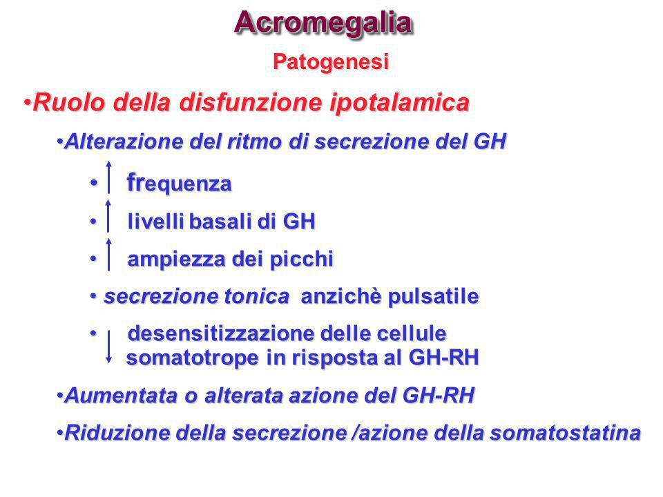 PatogenesiAcromegaliaAcromegalia Ruolo della disfunzione ipotalamicaRuolo della disfunzione ipotalamica Alterazione del ritmo di secrezione del GHAlte