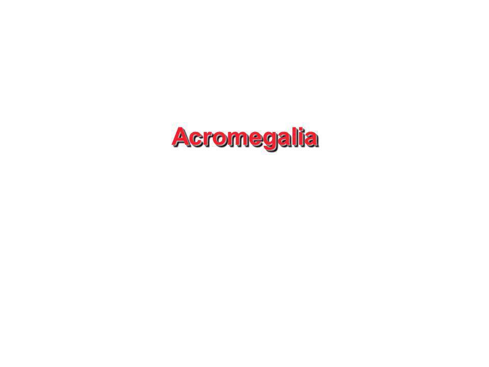 AcromegaliaAcromegalia