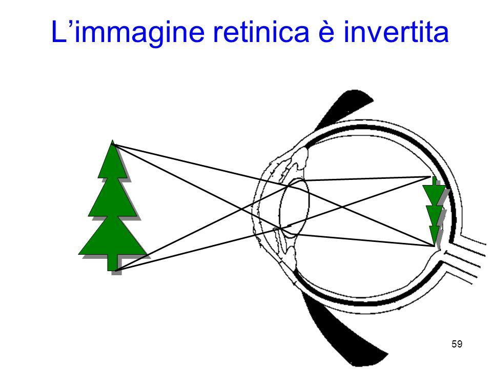 Limmagine retinica è invertita 59