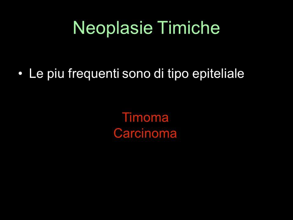 Neoplasie Timiche Le piu frequenti sono di tipo epiteliale Timoma Carcinoma