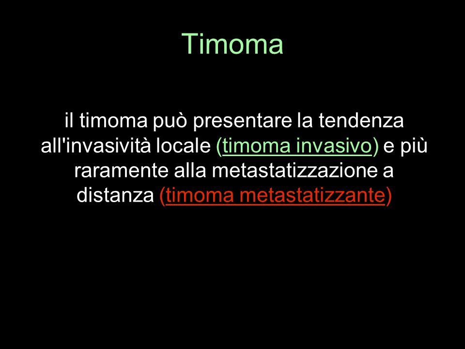 Timoma il timoma può presentare la tendenza all'invasività locale (timoma invasivo) e più raramente alla metastatizzazione a distanza (timoma metastat