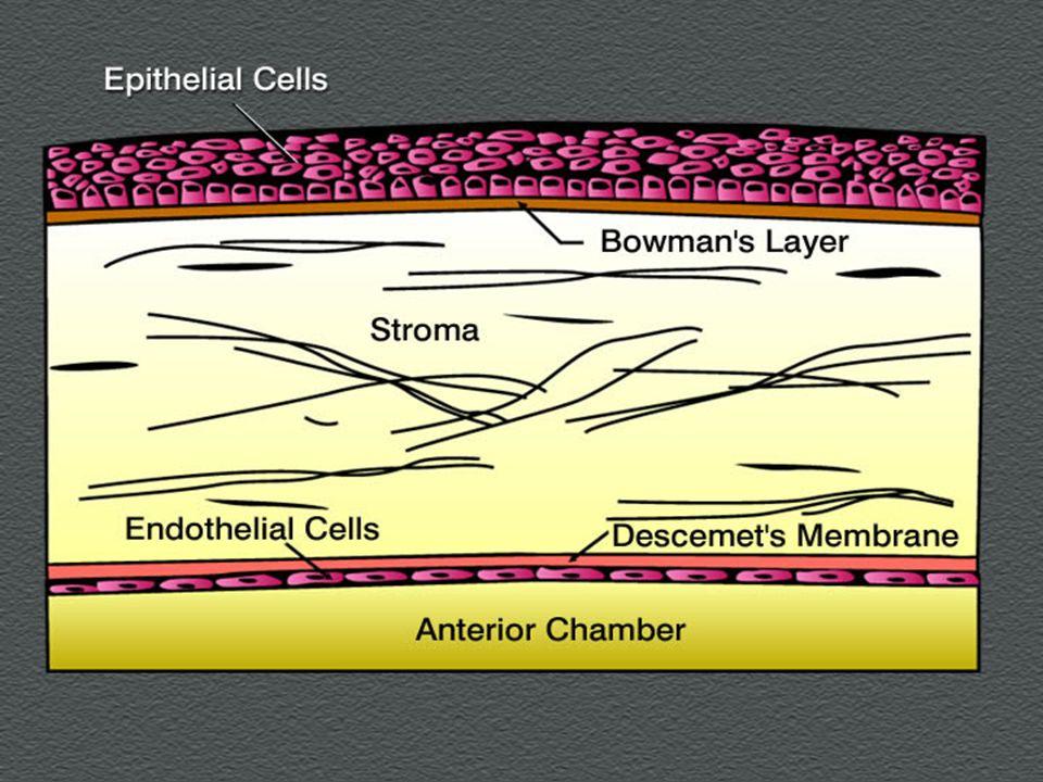 Alterazioni corneali in corso di affezioni tossiche metaboloche Cornea verticillata Cornea verticillata: depositi epiteliali simmetrici disposti a formare un vortice (Malattia di fabry, clorochina, tamoxifene, indometacina, amiodarone, meperidina, amodiachina, clorpromazina etc.) Mucopolisaccaridos Mucopolisaccaridosi: depositi corneali gia evidenti alla nascita, retinopatia pigmentosa, atrofia ottica (con leccezione dei tipi di Hunter e Sanfilippo)