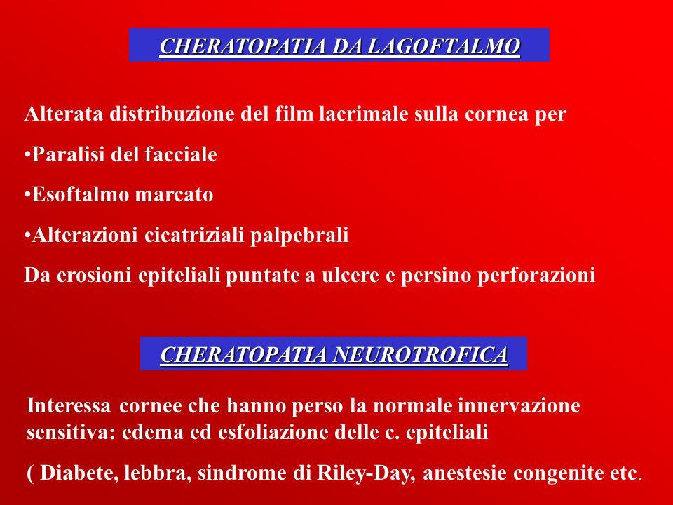 CHERATOPATIA DA LAGOFTALMO Alterata distribuzione del film lacrimale sulla cornea per Paralisi del facciale Esoftalmo marcato Alterazioni cicatriziali