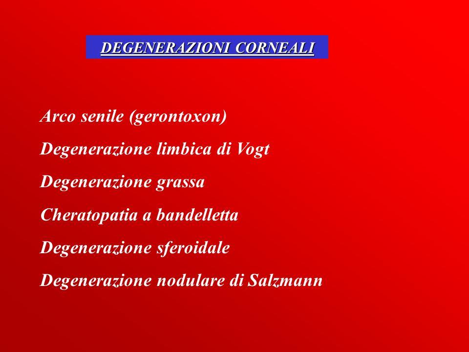 DEGENERAZIONI CORNEALI Arco senile (gerontoxon) Degenerazione limbica di Vogt Degenerazione grassa Cheratopatia a bandelletta Degenerazione sferoidale