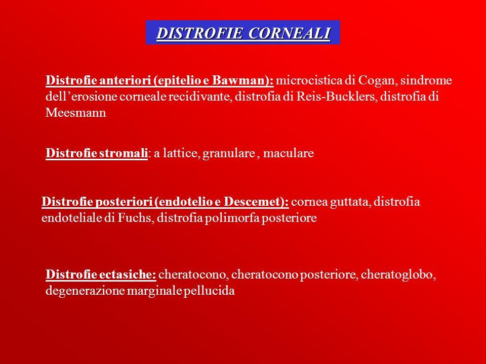 DISTROFIE CORNEALI Distrofie anteriori (epitelio e Bawman): microcistica di Cogan, sindrome dellerosione corneale recidivante, distrofia di Reis-Buckl