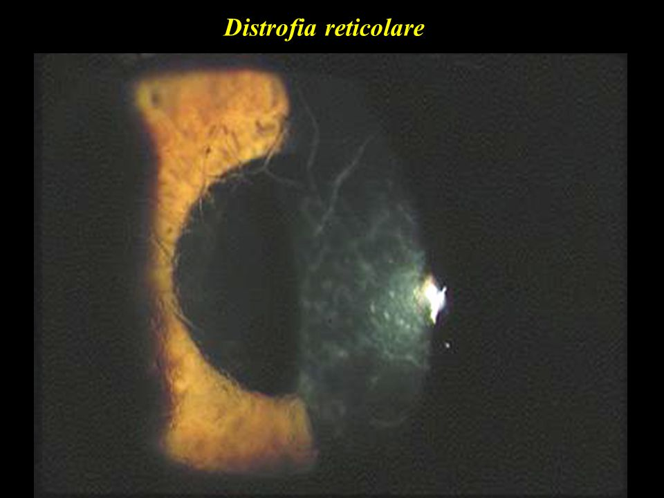 Distrofia reticolare