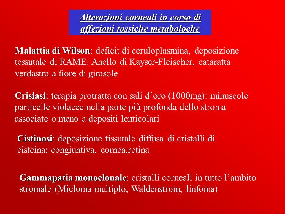 Alterazioni corneali in corso di affezioni tossiche metaboloche Malattia di Wilson Malattia di Wilson: deficit di ceruloplasmina, deposizione tessutal