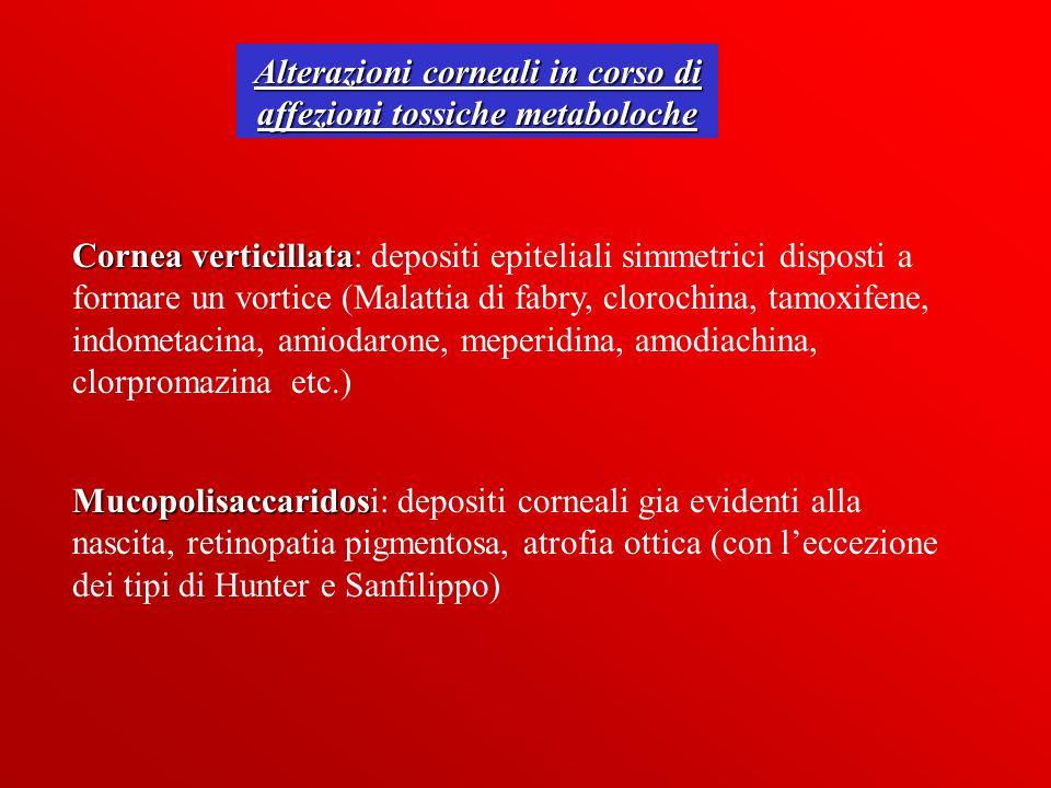 Alterazioni corneali in corso di affezioni tossiche metaboloche Cornea verticillata Cornea verticillata: depositi epiteliali simmetrici disposti a for