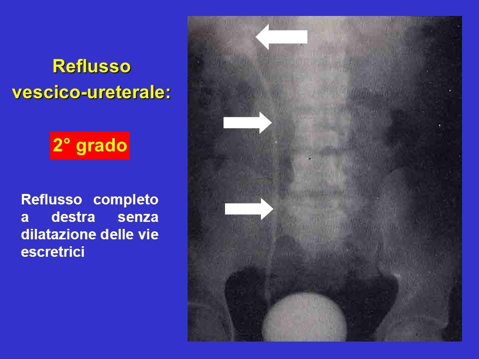 22 Reflussovescico-ureterale: Reflusso completo a destra senza dilatazione delle vie escretrici 2° grado