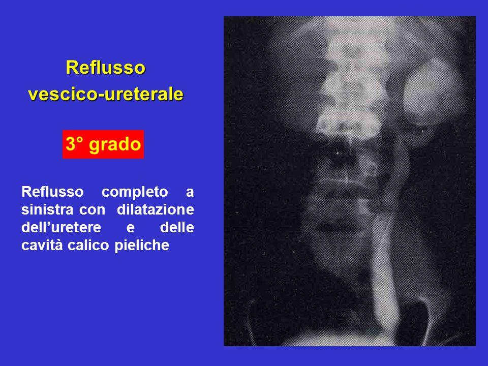 24 Reflussovescico-ureterale Reflusso completo a sinistra con dilatazione delluretere e delle cavità calico pieliche 3° grado