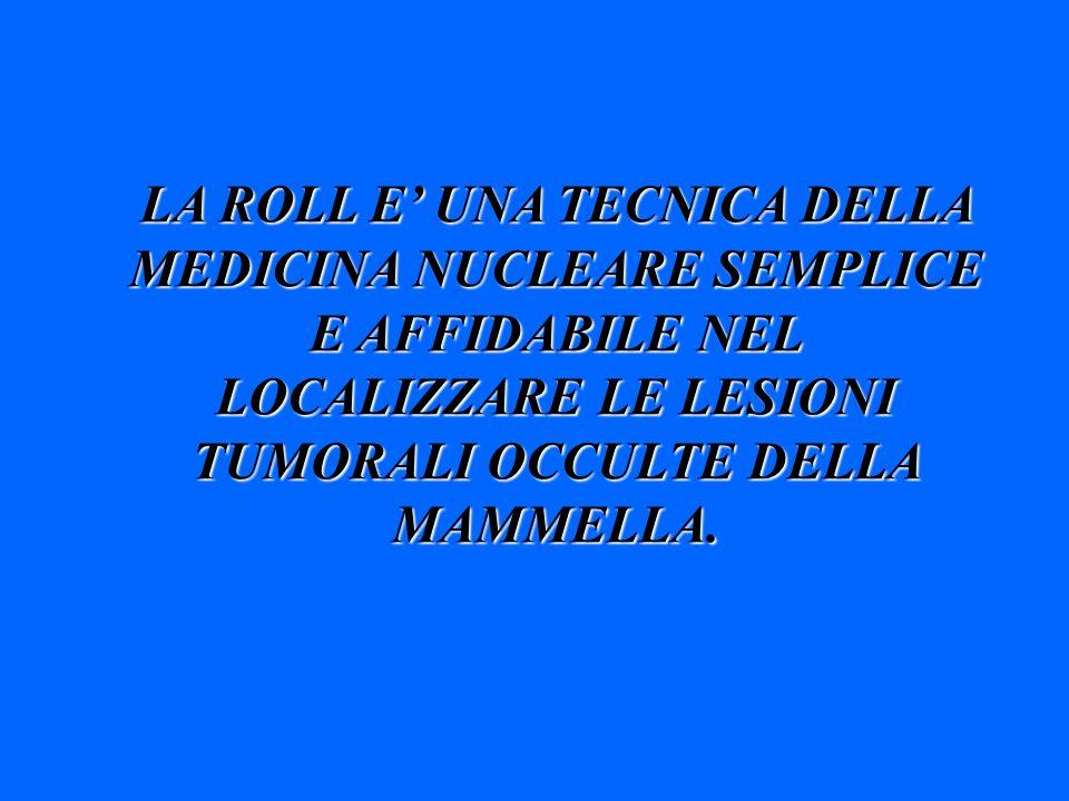LA ROLL E UNA TECNICA DELLA MEDICINA NUCLEARE SEMPLICE E AFFIDABILE NEL LOCALIZZARE LE LESIONI TUMORALI OCCULTE DELLA MAMMELLA.