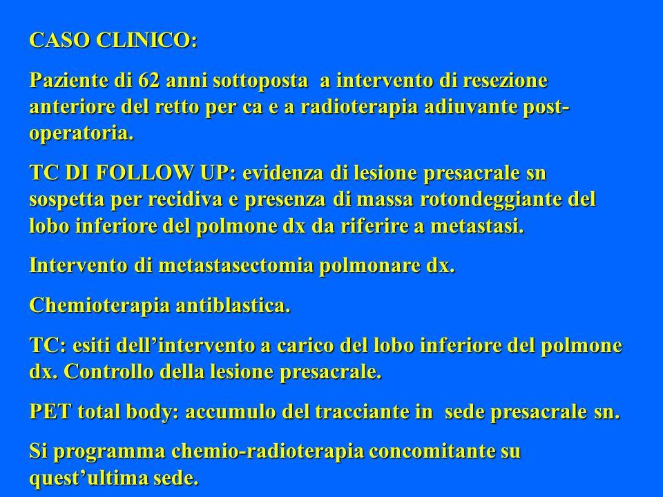 CASO CLINICO: Paziente di 62 anni sottoposta a intervento di resezione anteriore del retto per ca e a radioterapia adiuvante post- operatoria. TC DI F