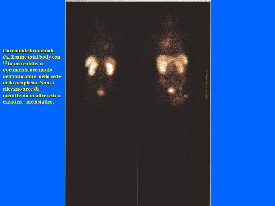 Carcinoide bronchiale dx. Esame total body con 111 In octreotide: si documenta accumulo dellindicatore nella sede dello neoplasia. Non si rilevano are