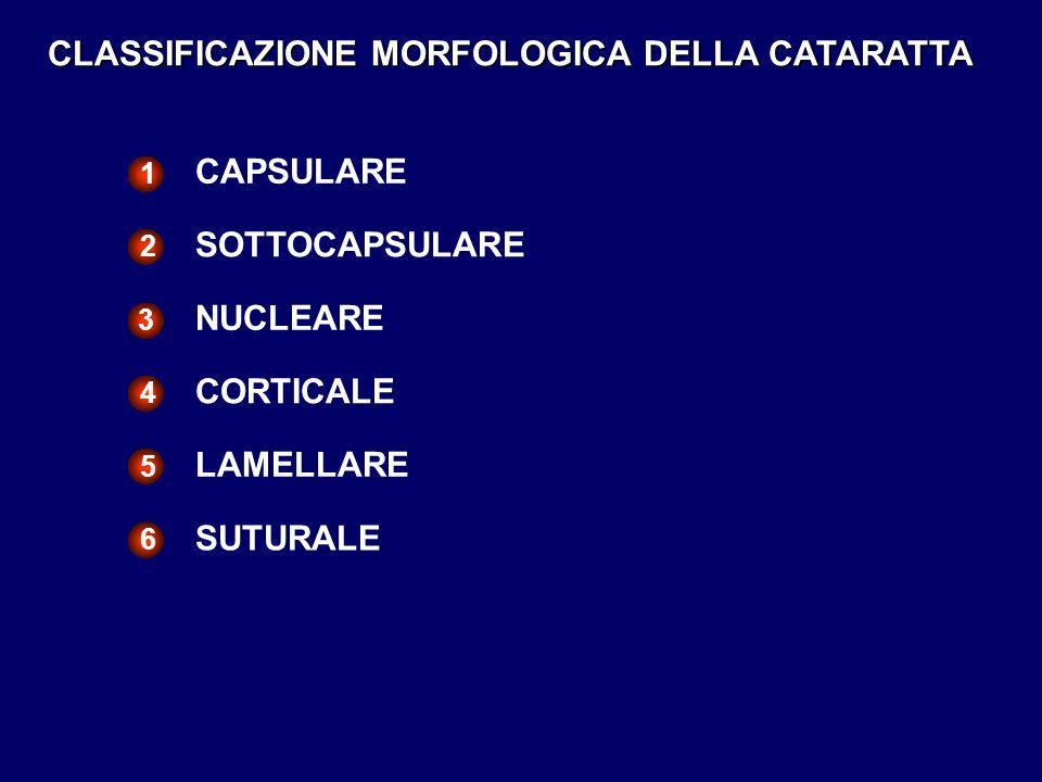 CLASSIFICAZIONE MORFOLOGICA DELLA CATARATTA CAPSULARE 1 SOTTOCAPSULARE 2 NUCLEARE 3 CORTICALE 4 LAMELLARE 5 SUTURALE 6