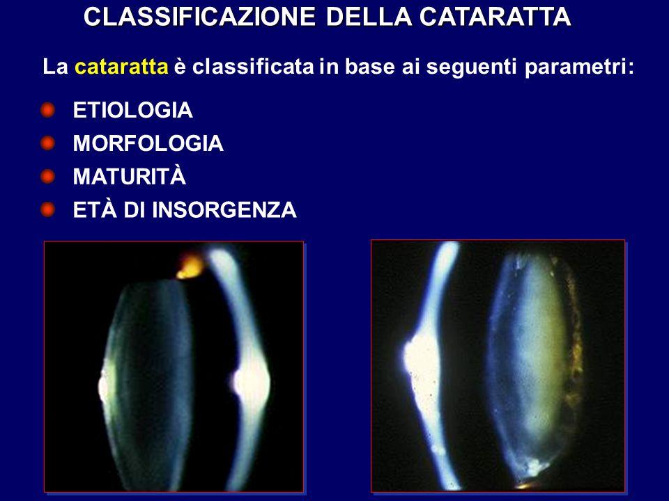 CLASSIFICAZIONE DELLA CATARATTA La cataratta è classificata in base ai seguenti parametri: ETÀ DI INSORGENZA ETIOLOGIA MORFOLOGIA MATURITÀ