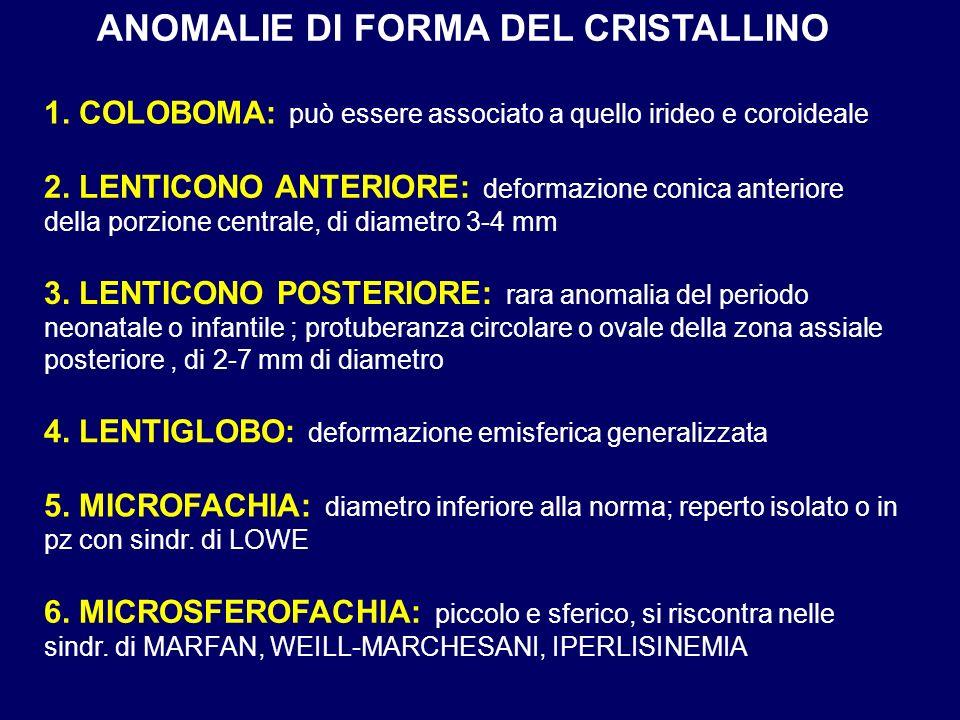 ANOMALIE DI FORMA DEL CRISTALLINO 6. MICROSFEROFACHIA: piccolo e sferico, si riscontra nelle sindr. di MARFAN, WEILL-MARCHESANI, IPERLISINEMIA 1. COLO