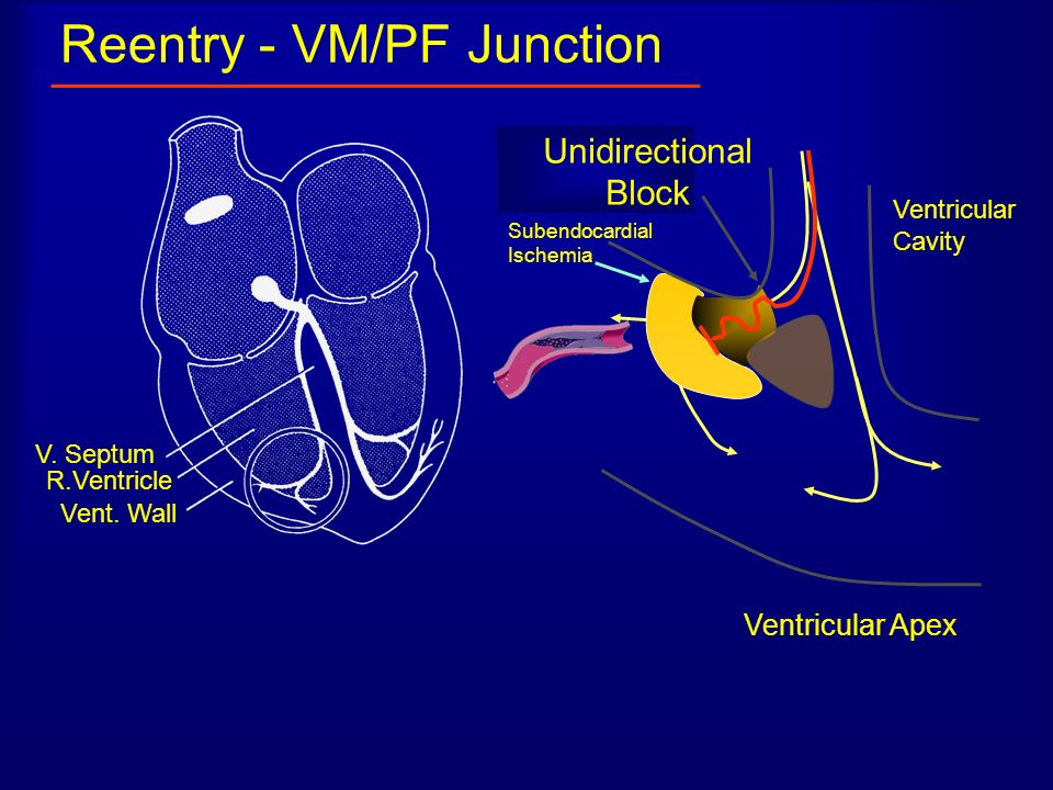 Reentry - VM/PF Junction V. Septum R.Ventricle Vent. Wall Ventricular Apex PF twig Ventricular Cavity Unidirectional Block Subendocardial Ischemia