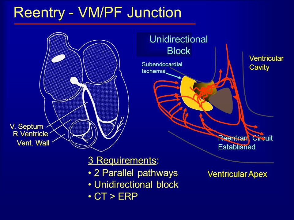 Reentry - VM/PF Junction V. Septum R.Ventricle Vent. Wall Ventricular Apex 3 Requirements: 2 Parallel pathways Unidirectional block CT > ERP Ventricul