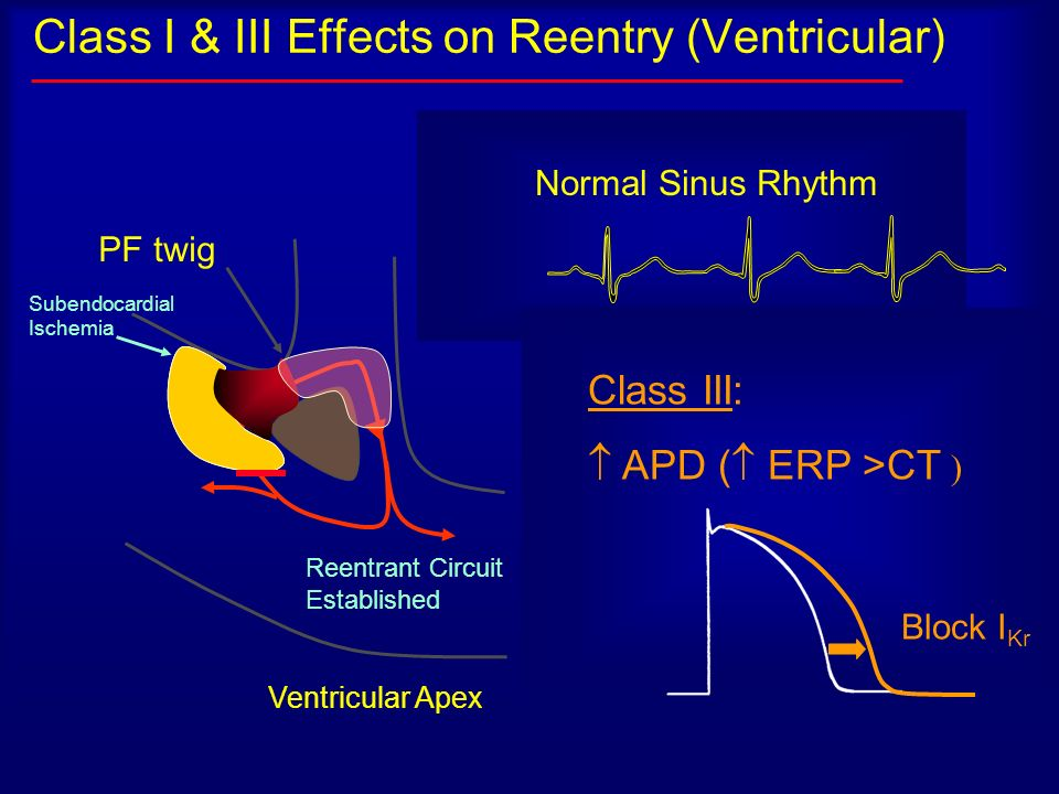 Class I & III Effects on Reentry (Ventricular) Ventricular Apex PF twig Reentrant Circuit Established Sustained V Tach: 3 Reentry Requirements: 2 Para