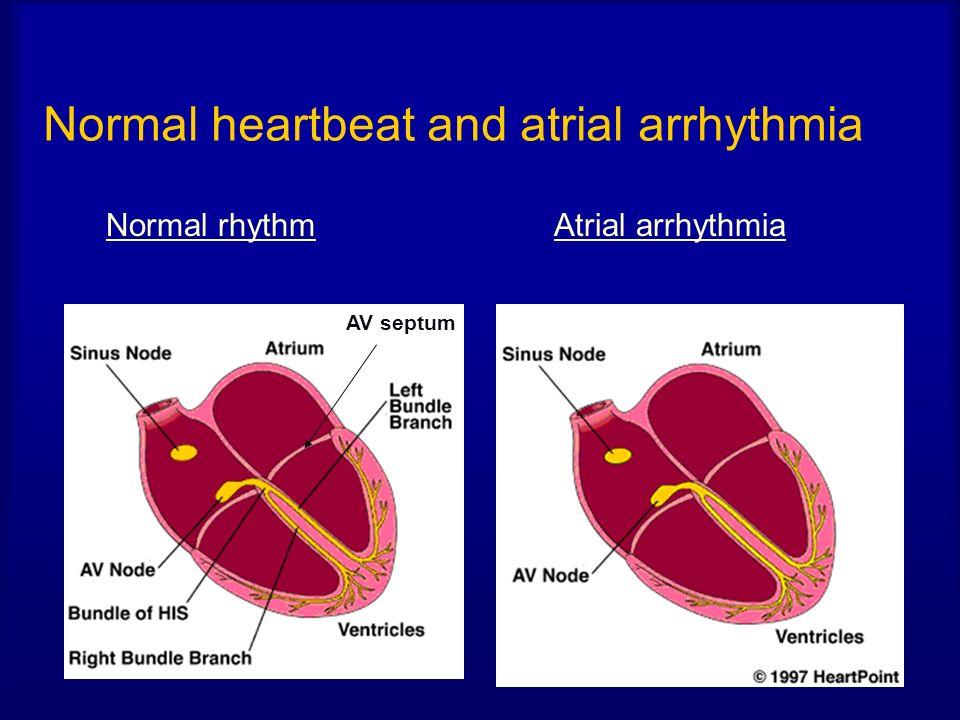 Normal heartbeat and atrial arrhythmia Normal rhythmAtrial arrhythmia AV septum