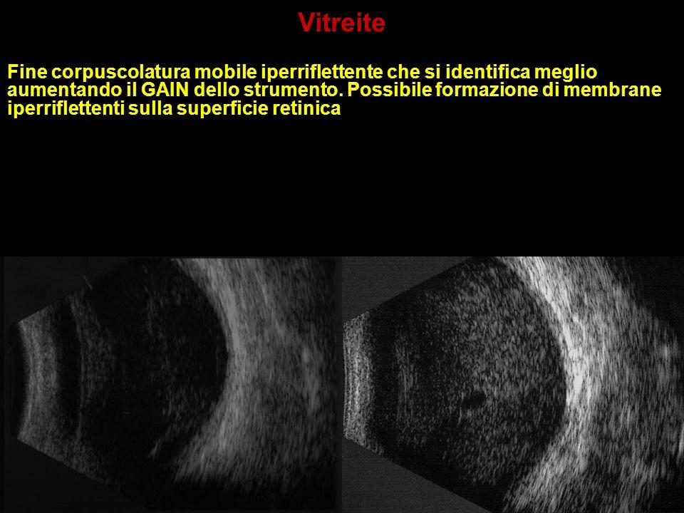 Vitreite Fine corpuscolatura mobile iperriflettente che si identifica meglio aumentando il GAIN dello strumento. Possibile formazione di membrane iper