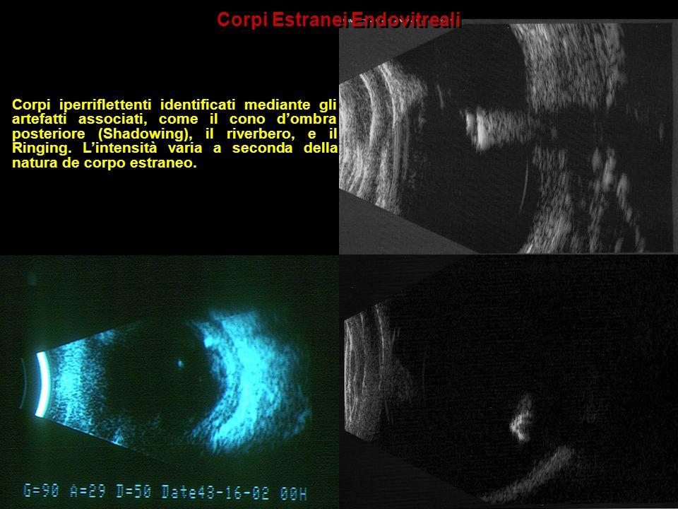 Corpi Estranei Endovitreali Corpi iperriflettenti identificati mediante gli artefatti associati, come il cono dombra posteriore (Shadowing), il riverb