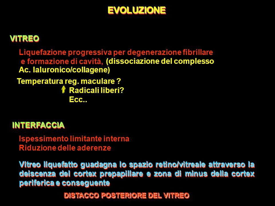 EVOLUZIONEEVOLUZIONEINTERFACCIAINTERFACCIA Ispessimento limitante interna Riduzione delle aderenze Vitreo liquefatto guadagna lo spazio retino/vitreal