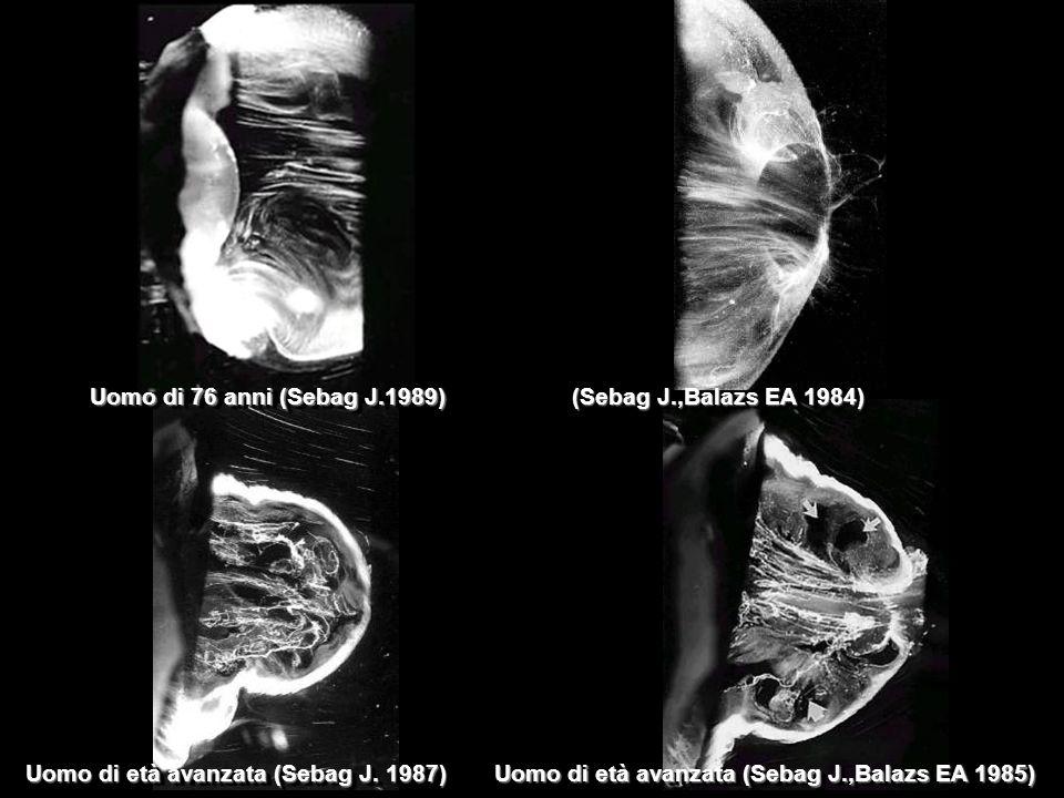 Uomo di età avanzata (Sebag J. 1987) Uomo di età avanzata (Sebag J.,Balazs EA 1985) Uomo di 76 anni (Sebag J.1989) (Sebag J.,Balazs EA 1984)