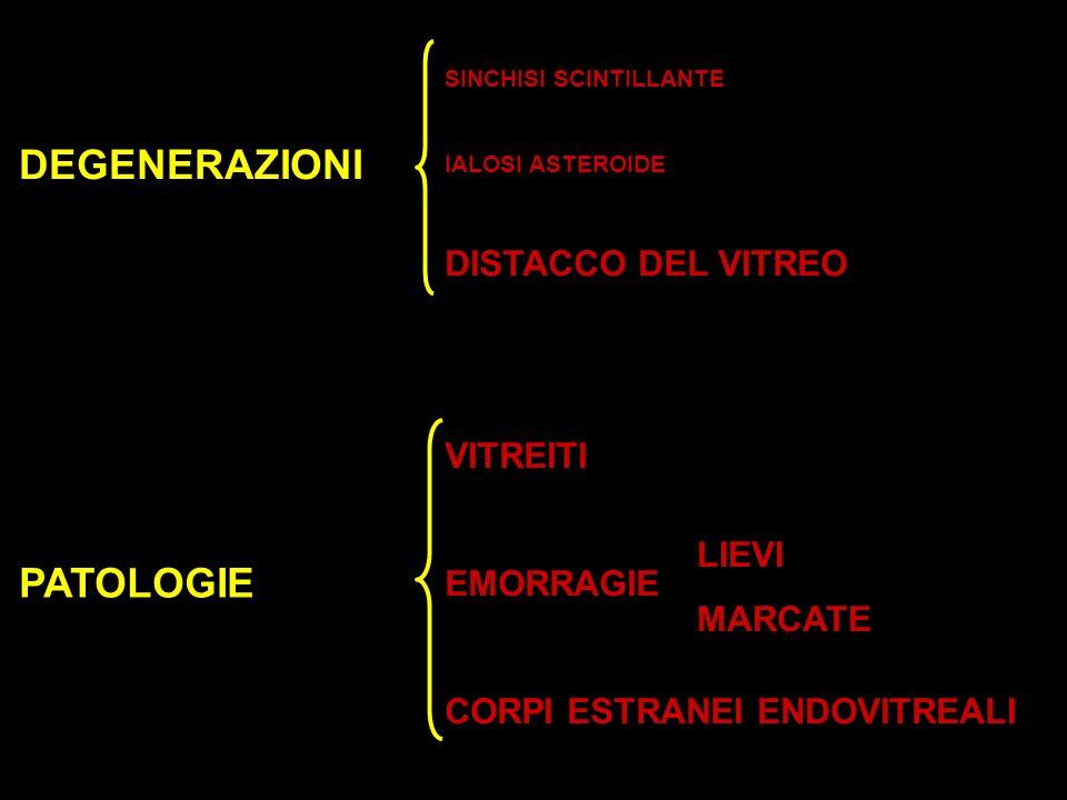 SINCHISI SCINTILLANTE IALOSI ASTEROIDE DISTACCO DEL VITREO VITREITI EMORRAGIE CORPI ESTRANEI ENDOVITREALI DEGENERAZIONI LIEVI MARCATE PATOLOGIE