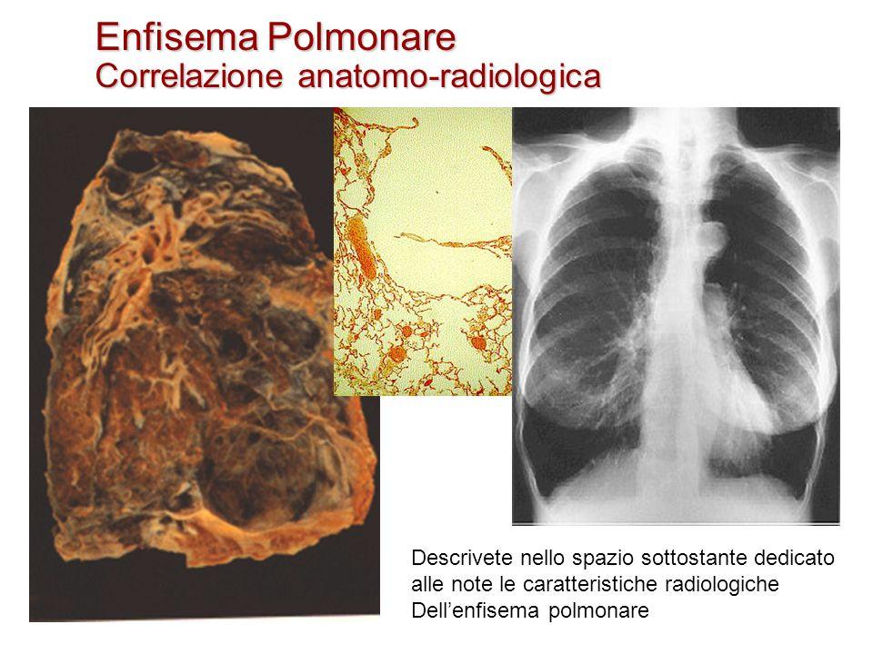 Enfisema Polmonare Correlazione anatomo-radiologica Descrivete nello spazio sottostante dedicato alle note le caratteristiche radiologiche Dellenfisem