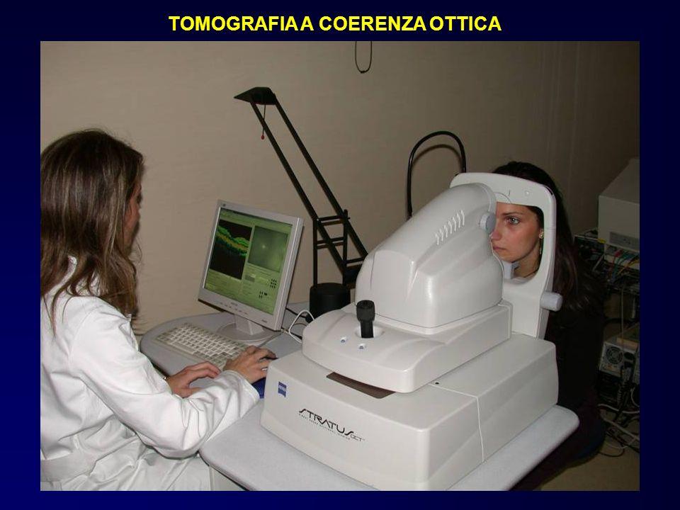 TOMOGRAFIA A COERENZA OTTICA
