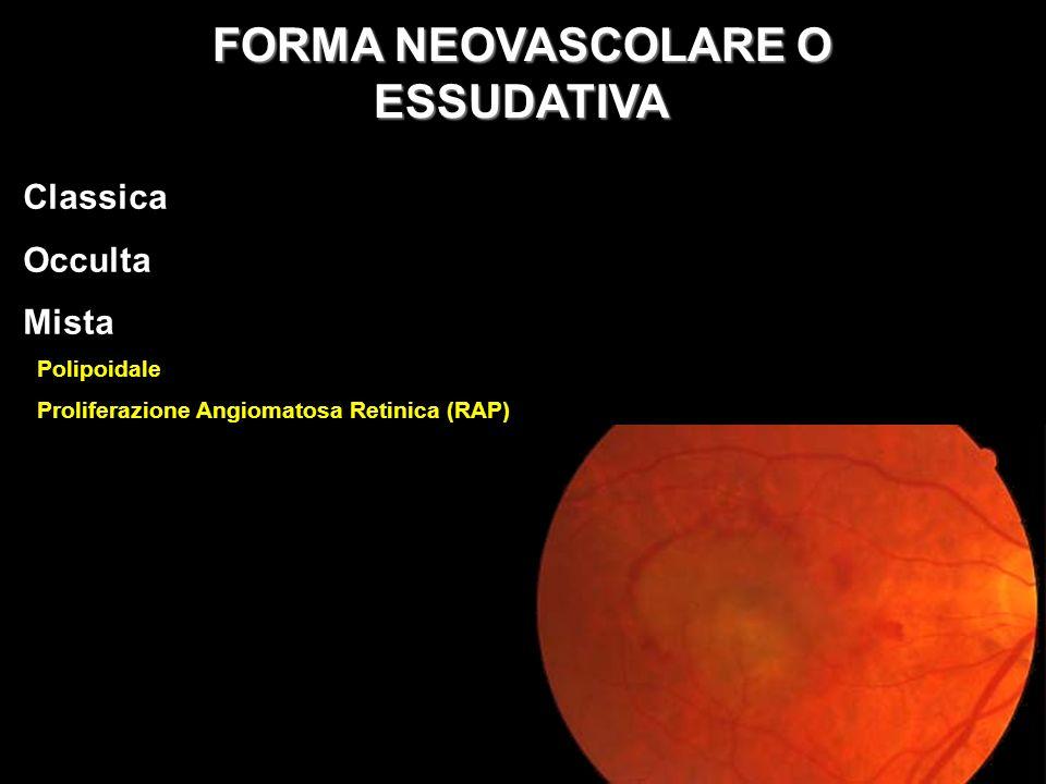 Classica Occulta Mista Polipoidale Proliferazione Angiomatosa Retinica (RAP) FORMA NEOVASCOLARE O ESSUDATIVA