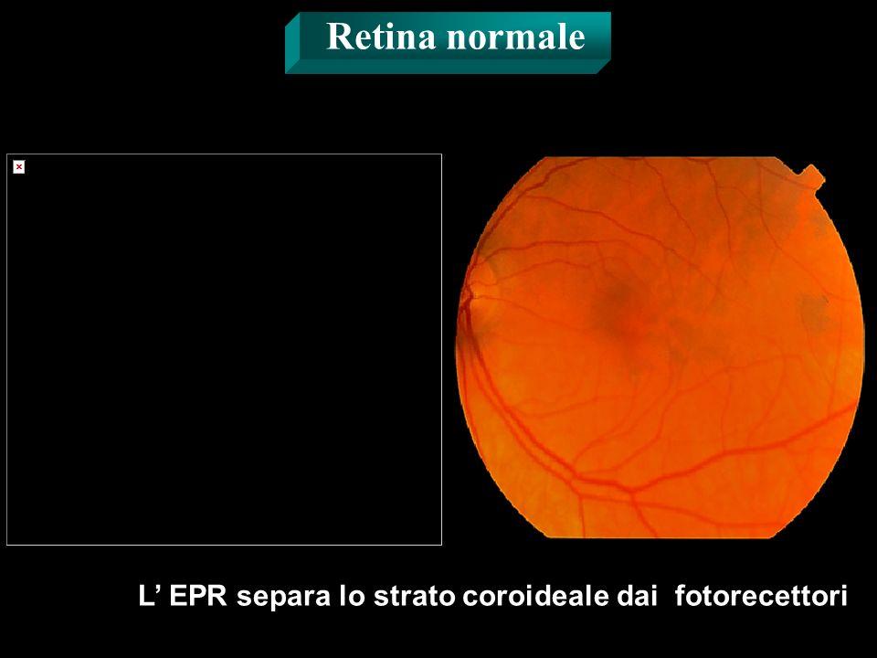 L EPR separa lo strato coroideale dai fotorecettori Retina normale