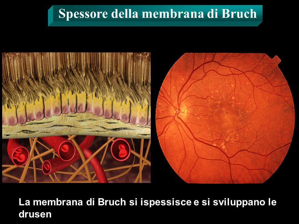 La membrana di Bruch si ispessisce e si sviluppano le drusen Spessore della membrana di Bruch