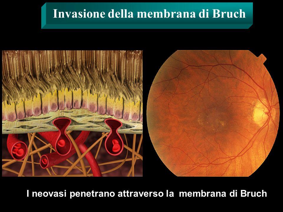 Invasione della membrana di Bruch I neovasi penetrano attraverso la membrana di Bruch