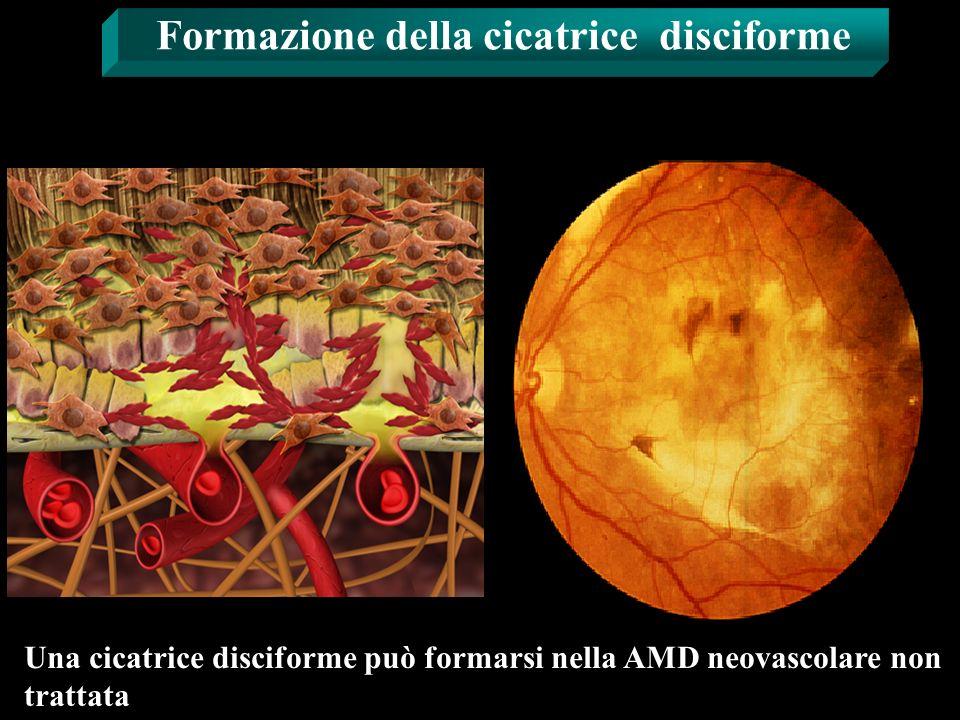 Formazione della cicatrice disciforme Una cicatrice disciforme può formarsi nella AMD neovascolare non trattata