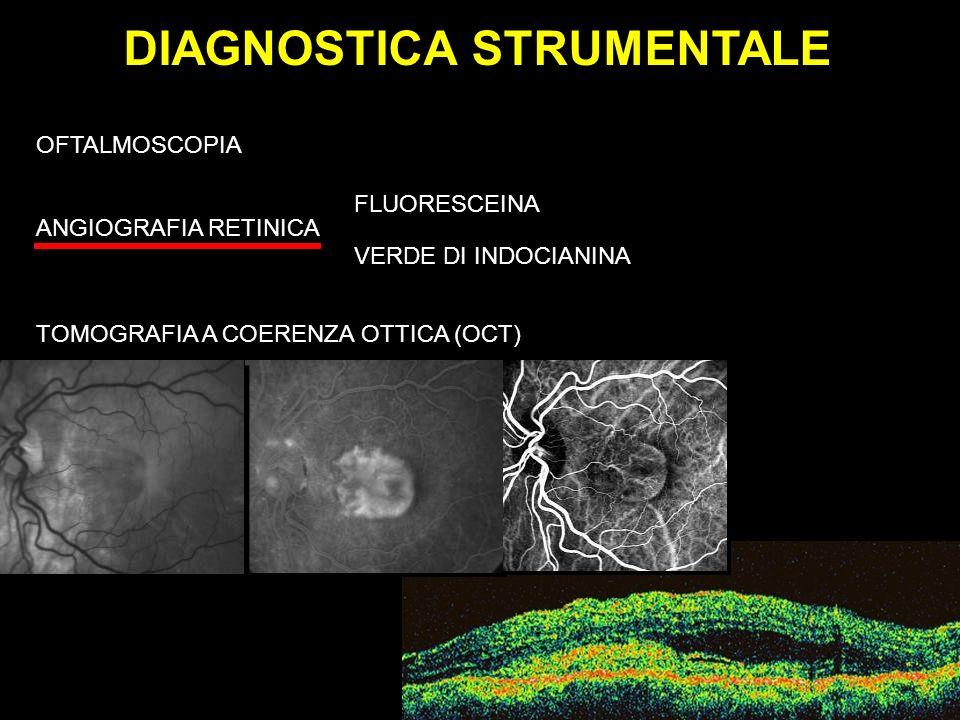 DIAGNOSTICA STRUMENTALE OFTALMOSCOPIA ANGIOGRAFIA RETINICA FLUORESCEINA VERDE DI INDOCIANINA TOMOGRAFIA A COERENZA OTTICA (OCT)
