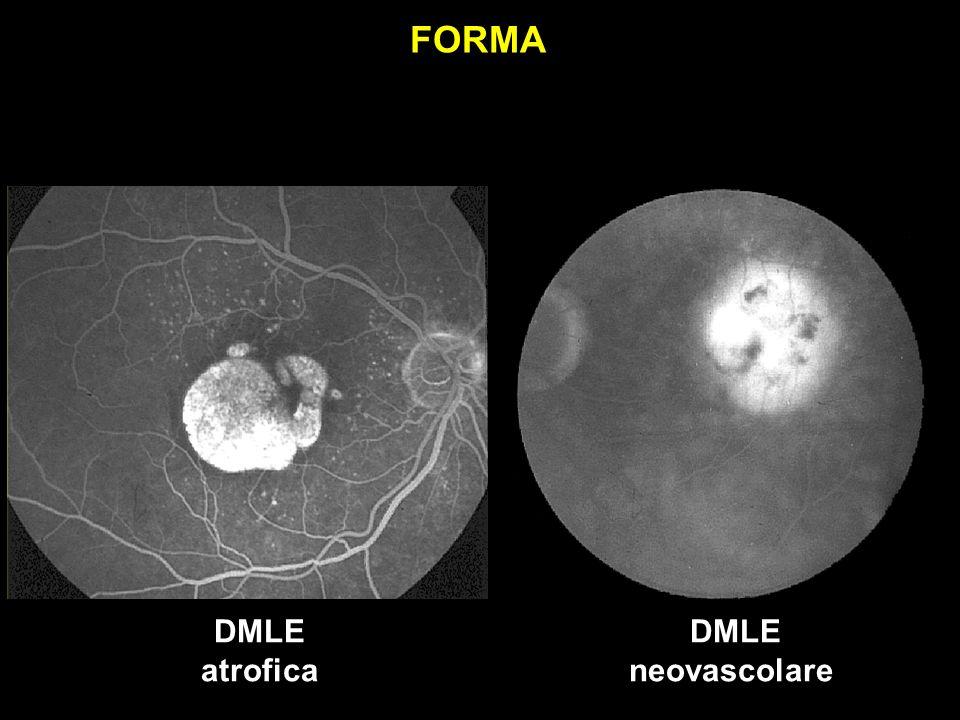 DMLE atrofica DMLE neovascolare FORMA
